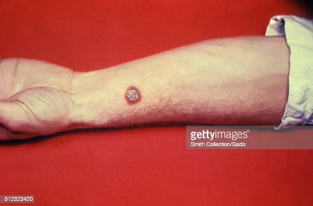 Anthrax skin of left forearm Cutaneous anthrax lesion on left forearm of a white male Image courtesy CDC 1990
