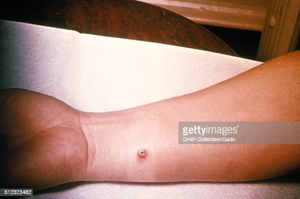 Anthrax skin of right forearm 4th day 27 year old white female with cutaneous anthrax on right forearm she'd worked in a spinning department of a...
