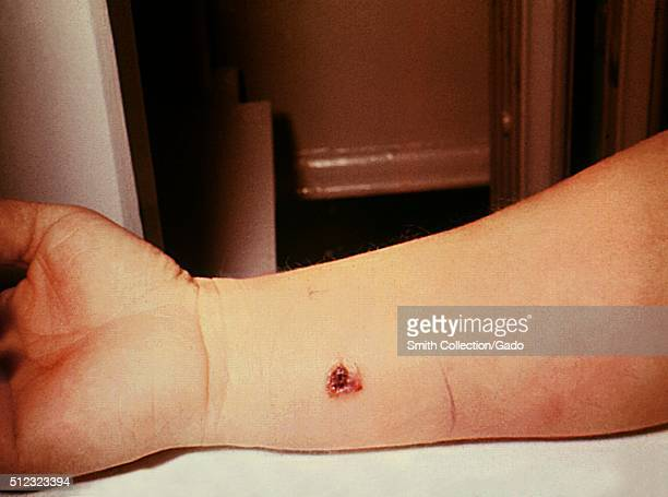 Anthrax skin of right forearm 7th day 27 year old white female with cutaneous anthrax on right forearm patient had worked in a spinning department of...