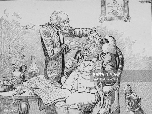 Anti vaccination caricature showing a grotesque doctor vaccinating a patient against smallpox using a lancet to poke multiple holes in the patient's...