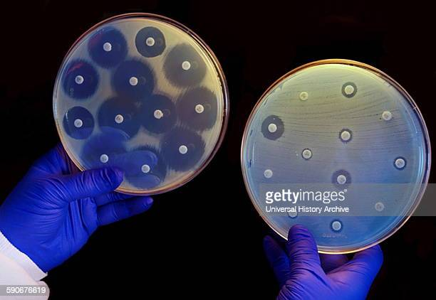 Antibiotics are placed in petri dishes filled with bacteria In the dish on the left the bacteria will not develop near the antibiotics In the right...