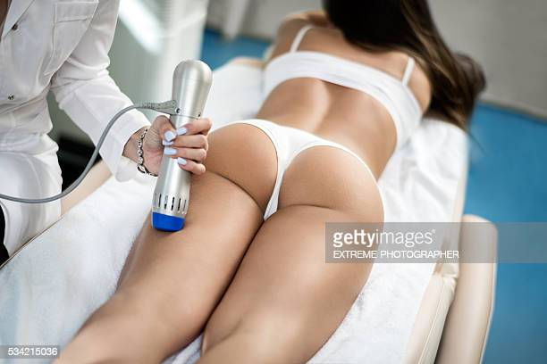 anticellulite treatment - beauty photos stock photos and pictures