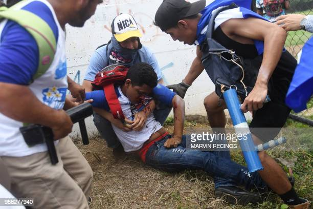 Antigovernment protesters help an injured partner during clashes within the 'Marcha de las Flores' in Managua on June 30 2018 At least six people...