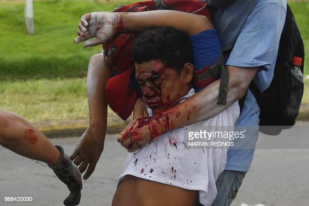 TOPSHOT Antigovernment protesters help an injured partner during clashes within the 'Marcha de las Flores' in Managua on June 30 2018 At least six...