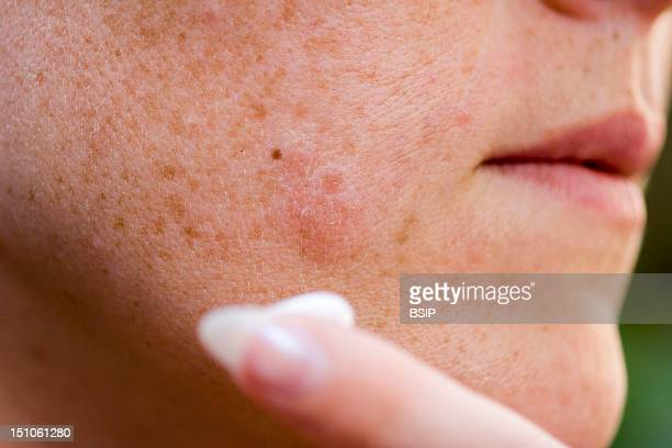 Antiviral Cream For The Treatment Of Labial Herpes Vesicles On The Cheek