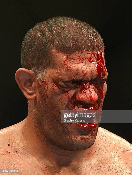 Antonio 'Big Foot' Silva's face is full of blood during the UFC Brisbane bout between Mark Hunt and Antonio 'Big Foot' Silva of Brazil at the...