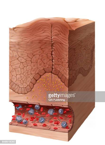 Appearance of an edema and of a rash The infectious agents multiply locally in the connective tissue Histamine causes the dilation of the blood...