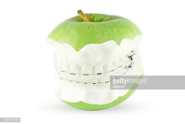 Mela con denti e orthdontic parentesi