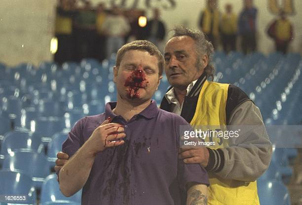 A blooded fan is attended to by an official during the European Cup Winners Cup semifinal between Arsenal and Sampdoria at Highbury Stadium in London...