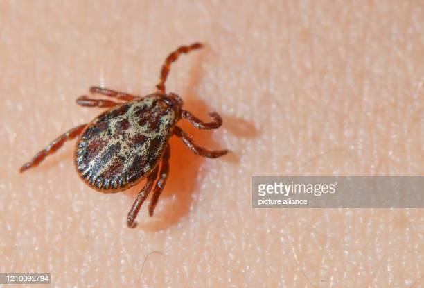 April 2020, Brandenburg, Sieversdorf: A tick crawls over the skin of a child. Photo: Patrick Pleul/dpa-Zentralbild/ZB