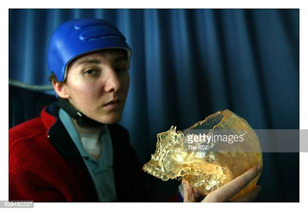 April Spearing holds a plastic mould of her skull that shows the area that was crushed in a car accident The damaged portion will be repaired in an...