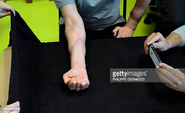 Aram Gazarian a surgeon specialized in hand transplant takes a picture of Stefano Silleoni's forearms a 41yearold Italian worker who received a...