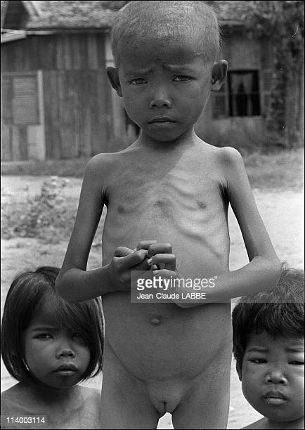 Archive VietnamCambodia war in CambodiaFamine in Kompong Speu area killing children