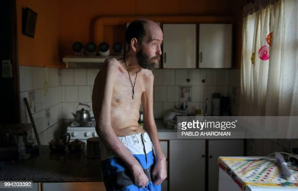 Argentinian former farmworker Fabian Tomasi remains at his home during an interview with AFP in Basavilbaso Entre Rios province Argentina on February...
