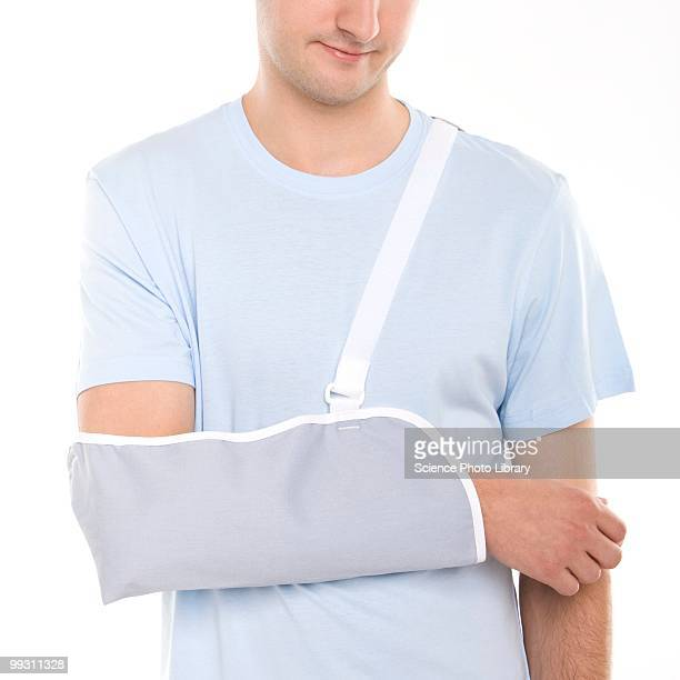 arm in a sling - broken arm stock pictures, royalty-free photos & images