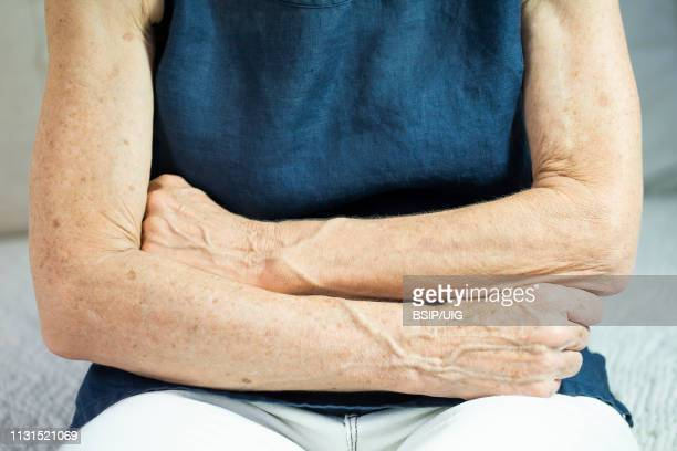 arm of old woman - lentigo stock pictures, royalty-free photos & images