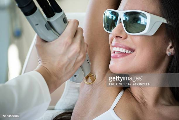 armpit epilation treatment - medical laser stock photos and pictures