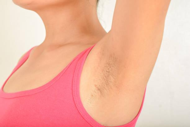 free hairy women