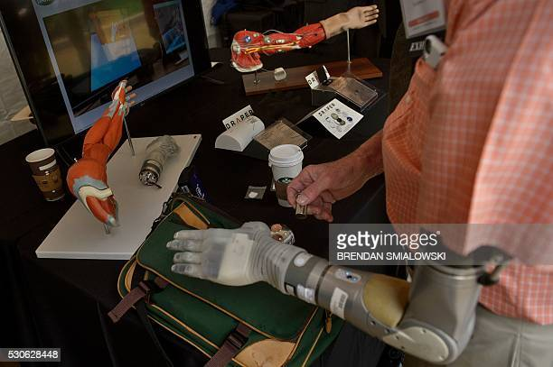Army Lieutenant Fred Downs who lost his arm to a land mine while serving in the Vietnam War uses his robotic hand that moves and provides sensations...