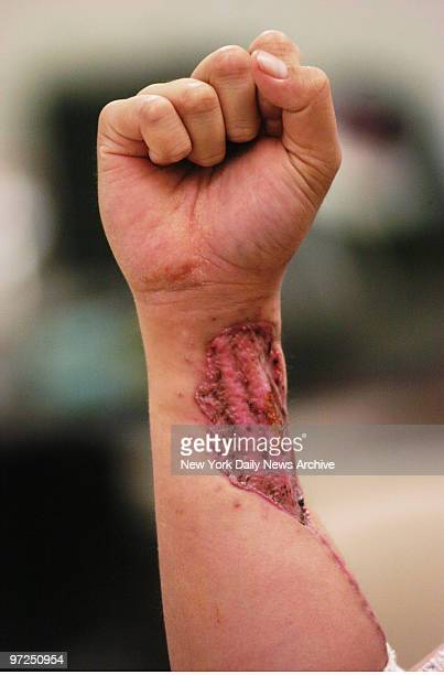 Army Sgt Anesi Tuufuli taking a break from physical therapy at Brooke Army Medical Center in Texas displays one of the numerous injuries he sustained...