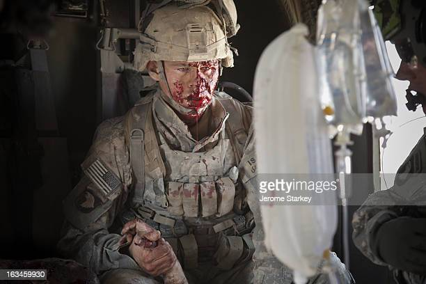 Army Specialist Jacob Moore stares into the distance as he clutches the hand of a seriously wounded comrade on board a helicopter air ambulance...