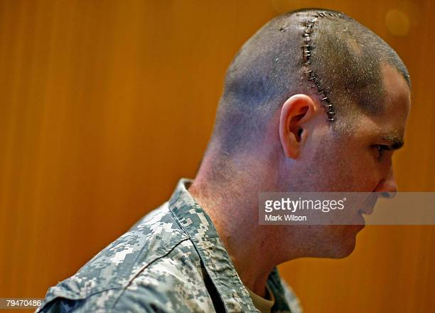 S Army Staff Sergeant Jeremy Murphy wears a scar from his injury on his head after just being presented with a Purple Heart during a ceremony at...