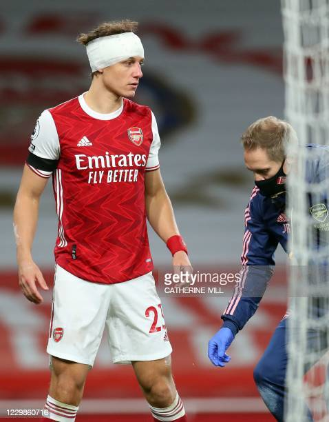 Arsenal's Brazilian defender David Luiz is bandaged after clashing heads with Wolverhampton Wanderers' Mexican striker Raul Jimenez during the...