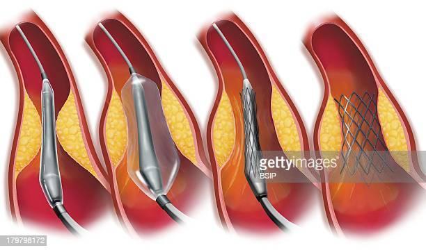 Arterial Angioplasty Illust
