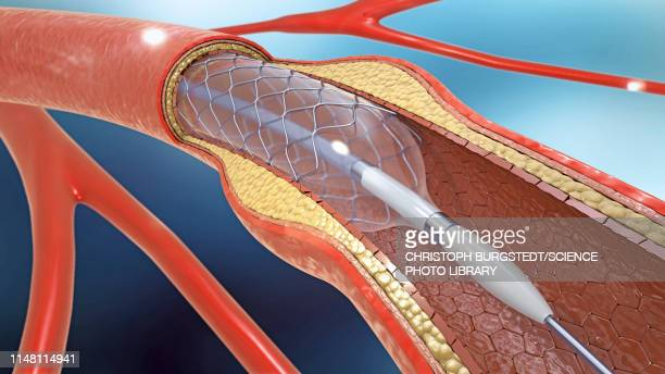 arterial stent, illustration - stent stock photos and pictures