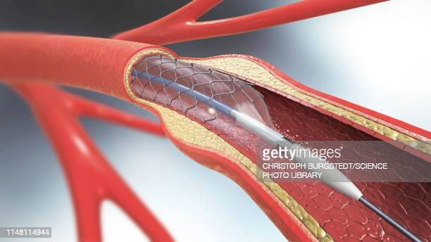 arterial stent, illustration - blood clot stock pictures, royalty-free photos & images