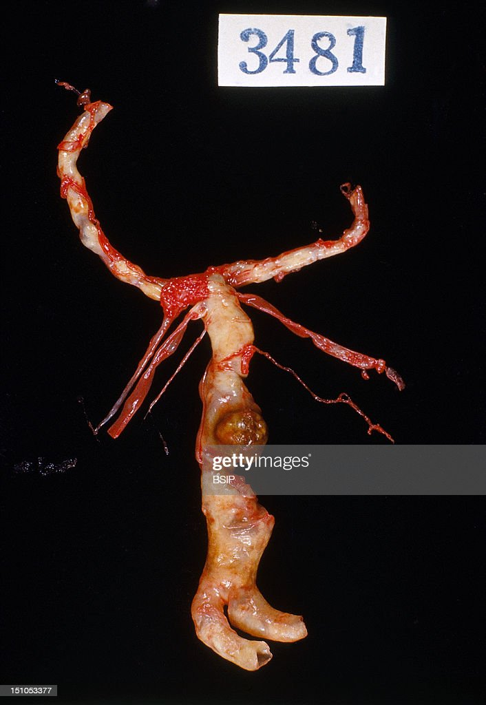 Anatomy, Brain Aneurism Pictures | Getty Images