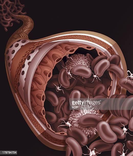 Artery Drawing