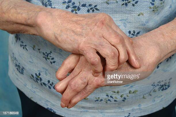 arthritic hands- front, arthritis rheumatism - osteoarthritis stock photos and pictures