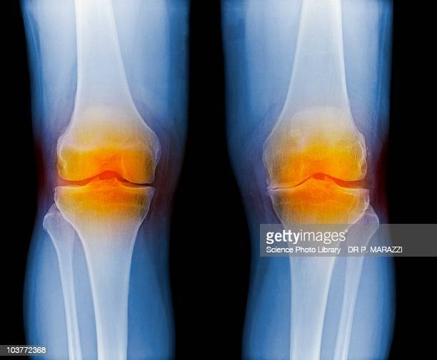 arthritic knees, x-ray - osteoarthritis stock photos and pictures