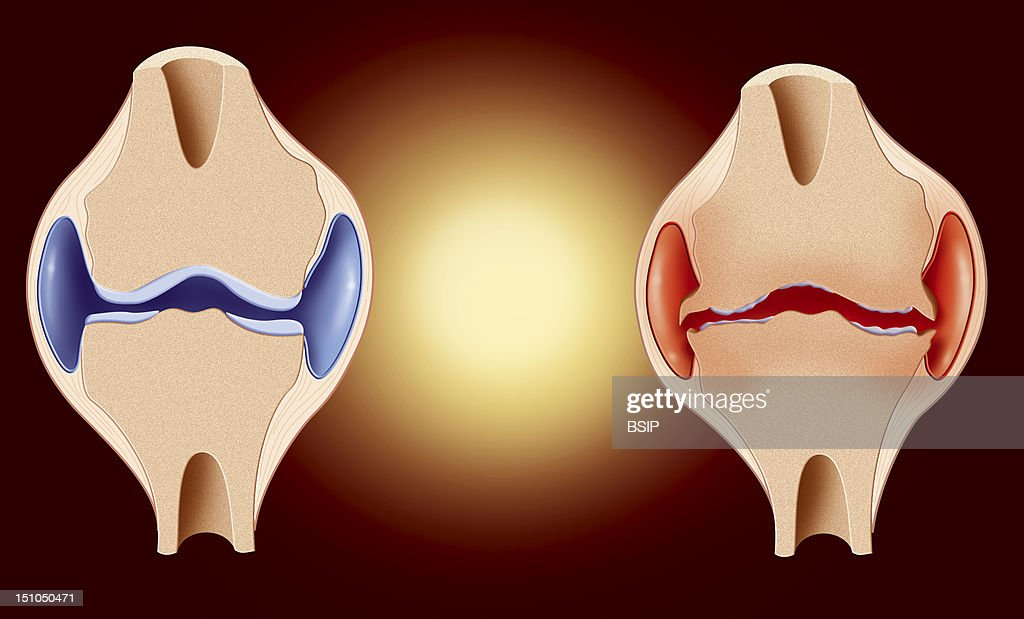 Knee Osteoarthritis Drawing Pictures Getty Images