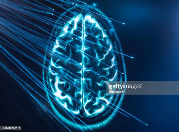 artificial intelligence, fibre optics carrying data passing into brain - mri scan stock pictures, royalty-free photos & images