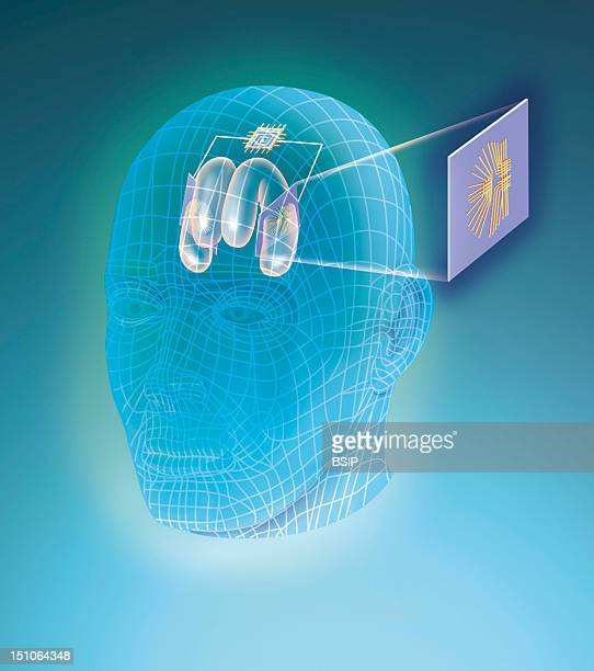 Artificial Memory The Hippocampus Is One Of The Main Seats Of Memorization Its Affection During Alzheimer's Disease An Accident A Cva Or An Epileptic...