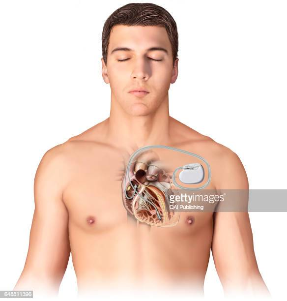 Artificial pacemaker Electronic implant that emits an electrical impulse in order to maintain a regular cardiac rhythm in patients with heart damage