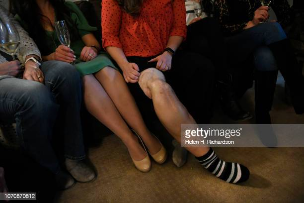 Artis Jacobsen shows her injured leg at her home on December 9 2018 in Arvada Colorado Twenty years ago Artis whose last name was Selby at the time...