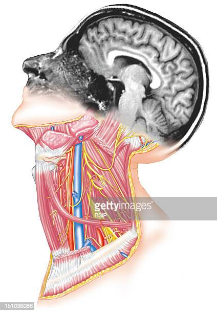 Artist View Of The Anatomy Of The Head In Mri And The Neck With The Jugular Vein Highlighted