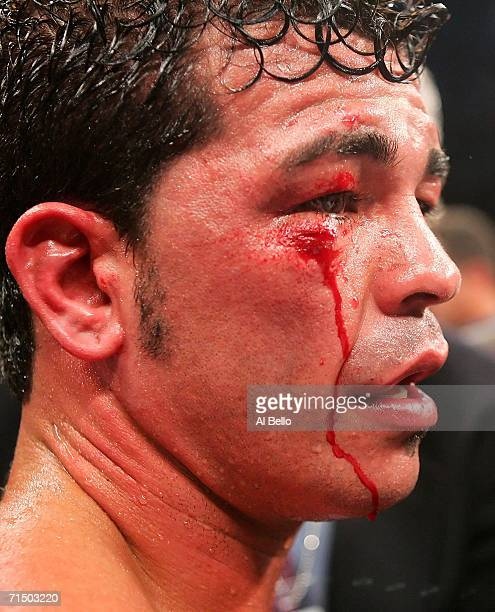 Arturo Gatti looks on after his WBC/IBA Welterweight Championship fight against Carlos Baldomir at Boardwalk Hall July 22 2006 in Atlantic City New...