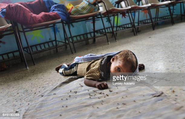Ashish 11 months lies severely malnourished on the floor while his mother Gheeta cleans herself in the Jeevan Jyoti Mission Hospital in Jhabua Madhya...