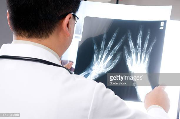Asian Doctor Looking at X-ray