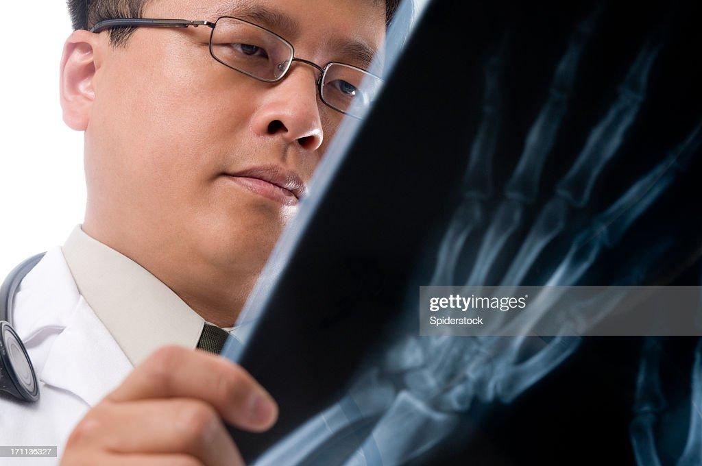 Asian Doctor Reading  X-Ray : Stock Photo