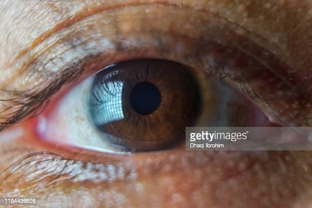 Asian Eyeball