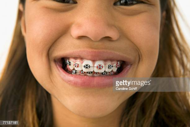 Asian girl smiling with braces
