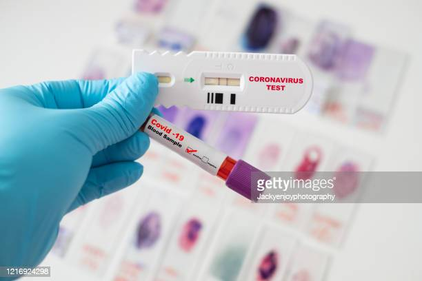 asian male doctor holding covid-19 blood sample and rapid test of coronavirus on laboratory background - wissenschaftliches experiment stock-fotos und bilder