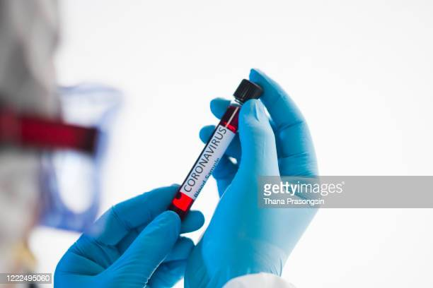 asian male doctor holding covid-19 blood sample on white background - scientific experiment stock pictures, royalty-free photos & images