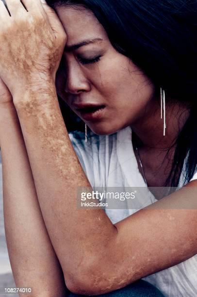 mulher asiática choro - cicatriz imagens e fotografias de stock