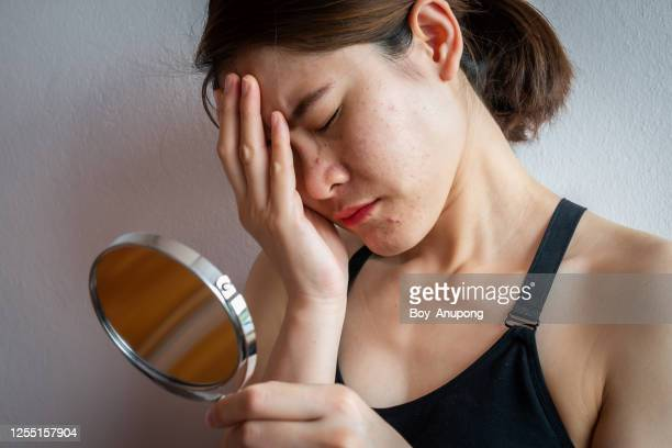 asian woman stressed after saw acne and aging skin problem occur on her face by mirror. - acne rosacea foto e immagini stock